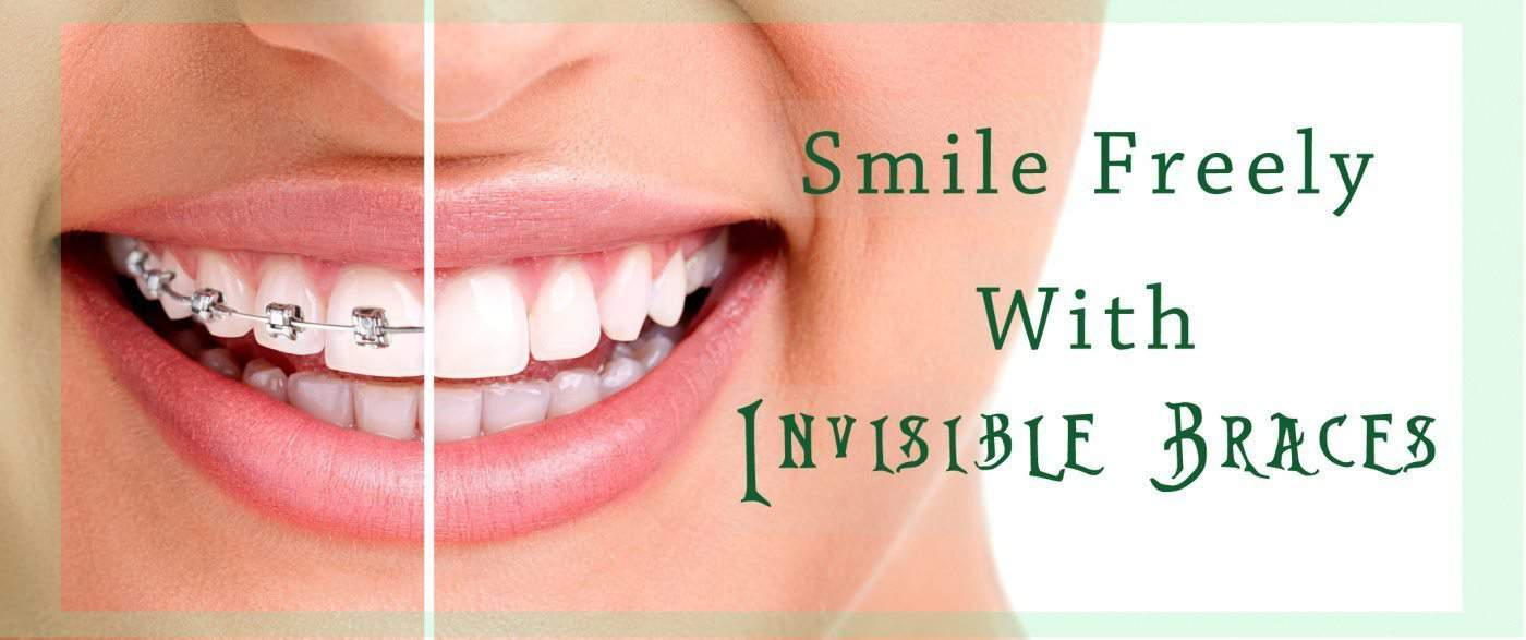 smile freely with invisible Braces- indorehd.psd