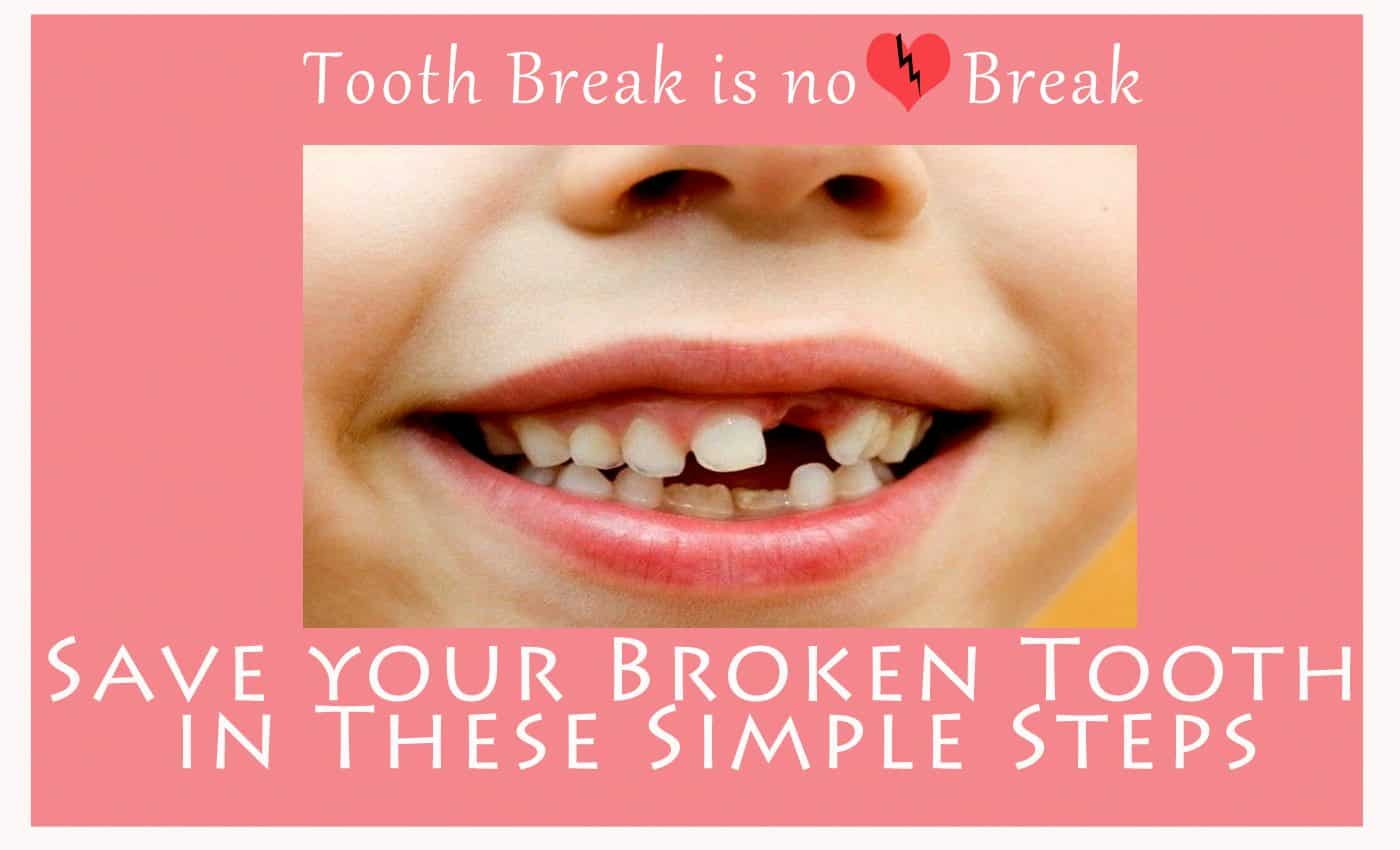 Save your Broken Tooth in These Simple Steps-Indore-HD.psd